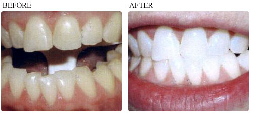 Before & After Whitening